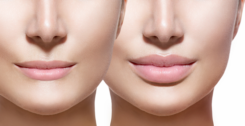 Lip_augmentation_toronto_before_after-798x410.jpg